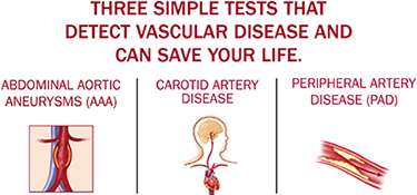 3 tests for vascular disease