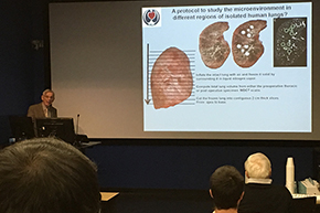 A2DRC guest speaker Dr. James Hogg lectures on IPF genetics on Jan. 25 - photo #3