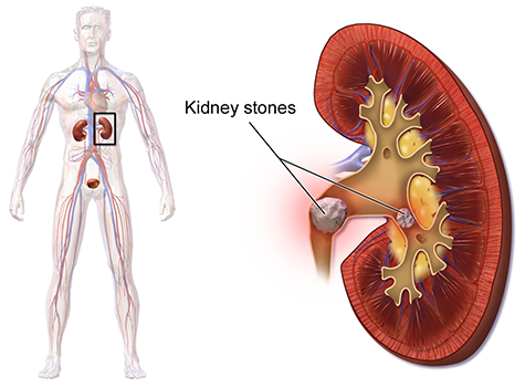 Kidney stone formation