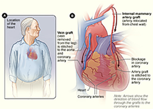 Diagram of coronary artery bypass grafting (CABG) surgery