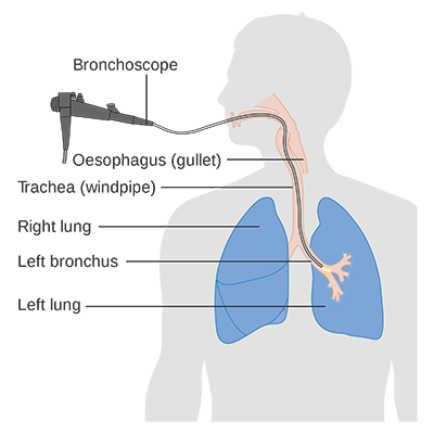 Diagram showing a bronchoscopy. (Courtesy of Cancer Research UK/Wikipedia)