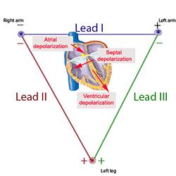 Einhoven triangle [Courtesy McGill Physiology Virtual Lab, McGill University]