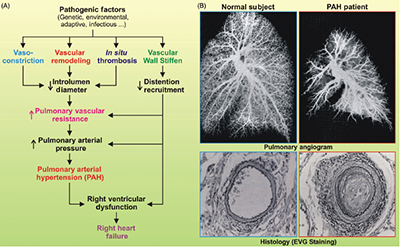 "Figure from ""Endothelial and Smooth Muscle Cell Ion Channels in Pulmonary Vasoconstriction and Vascular Remodeling."""