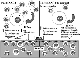 Highly active antiretroviral therapy (HAART) and HIV-related lung disorders