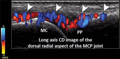 graphic illustrating ultrasonography of rheumatologic diseases