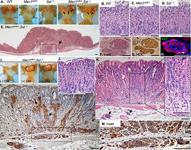 Gastric Carcinoid in Men1ΔIEC; Sst−/− mice. [SOURCE: Current Gastroenterology Reports]