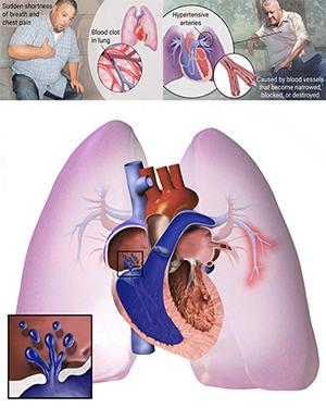 Illustrations depicting pulmonary hypertension and pulmonary embolism [SOURCE: BruceBlaus/Wikipedia and Christy Krames Medical Illustrations]