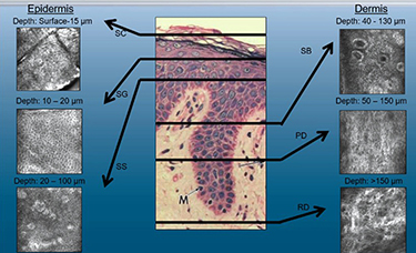 Graphic of epidermal lesions