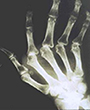 x-ray of hand showing effects of rheumatoid arthritis