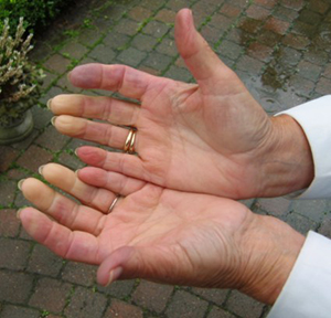 Reynaud's syndrome, a medical condition in which spasm of arteries cause episodes of reduced blood flow, particularly in the hands.