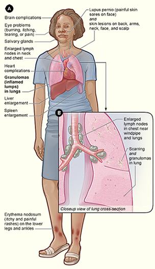 Sarcoidosis signs and symptoms (Courtesy NIH/NHLBI via Wikipedia)