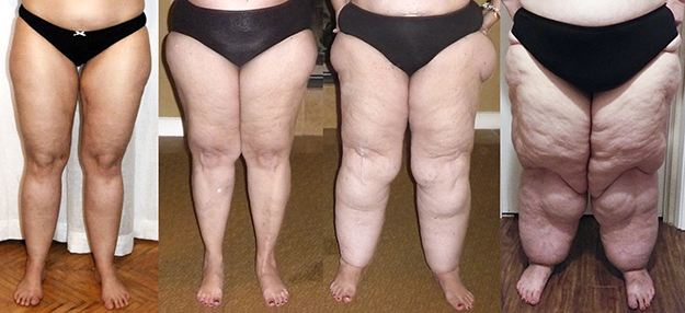 Stages of Lipedema