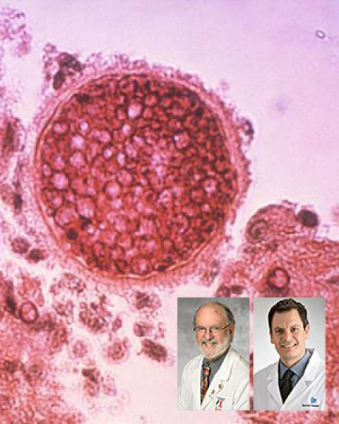 Teaser image for New Banner Health Clinical Practice guidance for Valley fever