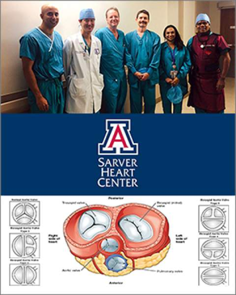 Teaser image for UA Structural Heart Disease Team's first-ever bicuspid TAVR-TEE procedure with no contrast