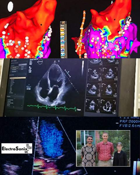 Teaser image for story on ElectroSonix LC licensing acoustoelectric imaging technology from University of Arizona for cardiac and brain procedures