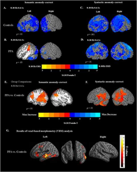 Figure 3 of March 2018 article in NeuroImage: Clinical