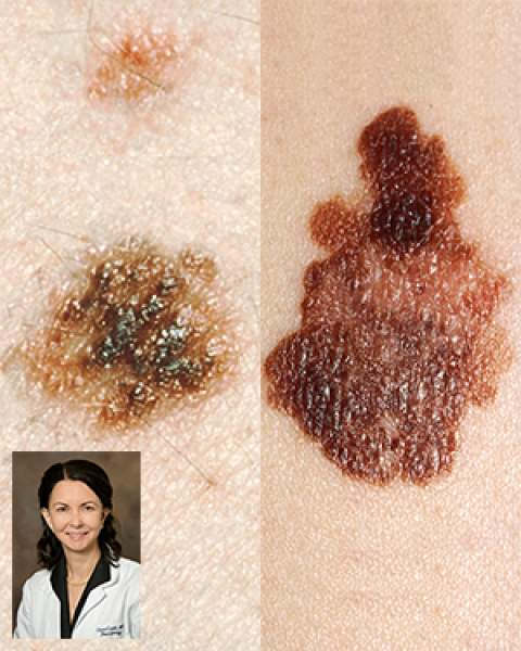 Moles, melanoma and Dr. Clara Curiel-Lewandrowksi, of the UA Skin Cancer Institute