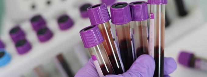 Blood vials in research lab (Courtesy MaxPixel.com)